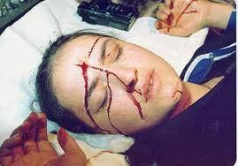 Myrna Nazzour din Damasc, suferind pentru păcatele lumii (!)